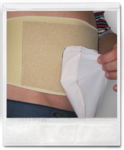 Push | Reinforcement for our ostomy bandages | Colostomy / Ileostomy / Urostomy