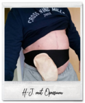 Opossum | ostomy belt neoprene soft | ileostomy / urostomy